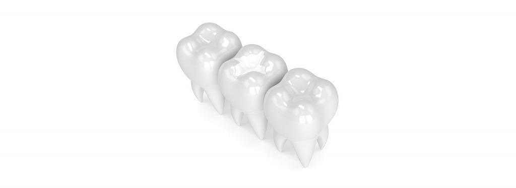 Tooth Coloured Fillings   Kingsland Family Dental Centre   SW Calgary   General Dentist