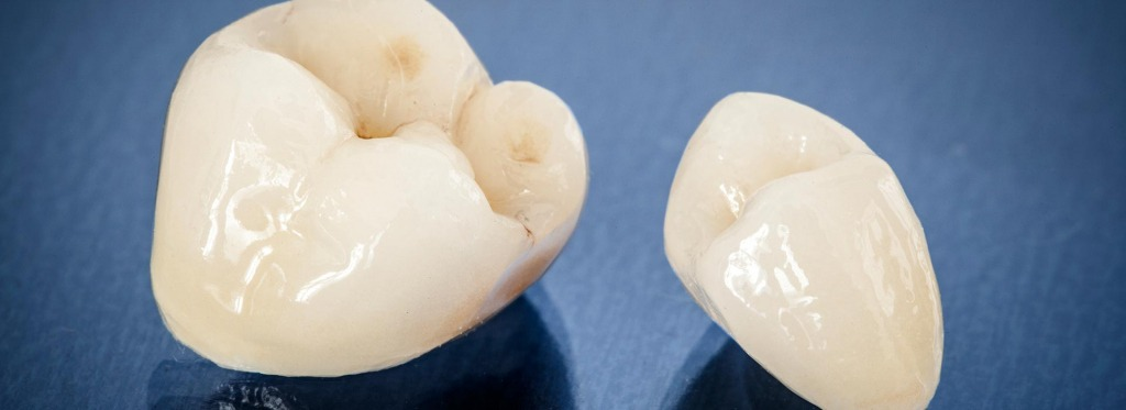 Dental Crown   Kingsland Family Dental Centre   SW Calgary   General Dentist