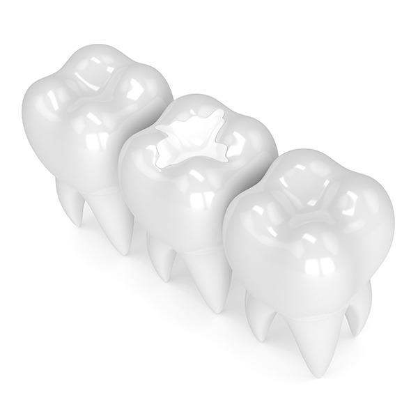 Tooth Coloured Fillings | Kingsland Family Dental Centre | SW Calgary | General Dentist