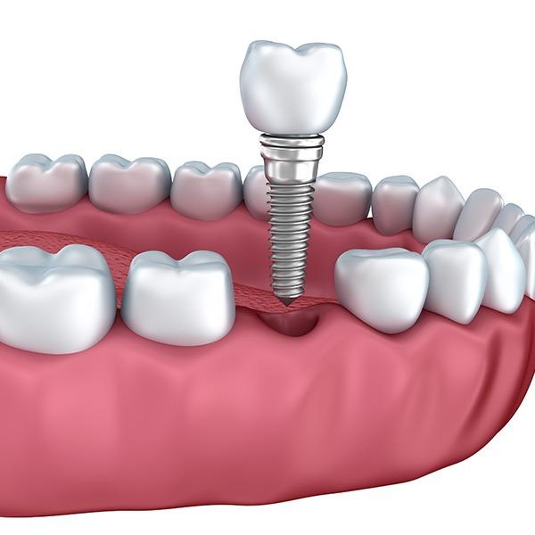 Dental Implants | Kingsland Family Dental Centre | SW Calgary | General Dentist