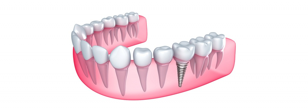 Dental Implants   Kingsland Family Dental Centre   SW Calgary   General Dentist