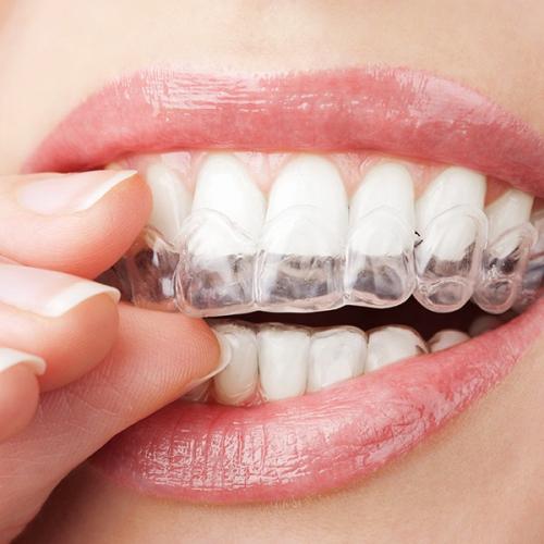Invisalign Clear Aligners | Kingsland Family Dental Centre | SW Calgary | General Dentist