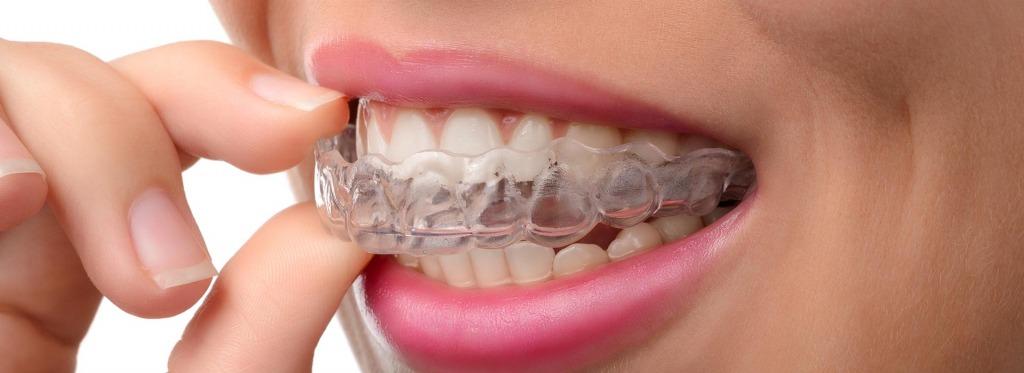 Orthodontic Dentistry   Kingsland Family Dental Centre   SW Calgary   General Dentist