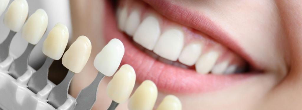 Porcelain Veneers   Kingsland Family Dental Centre   SW Calgary   General Dentist