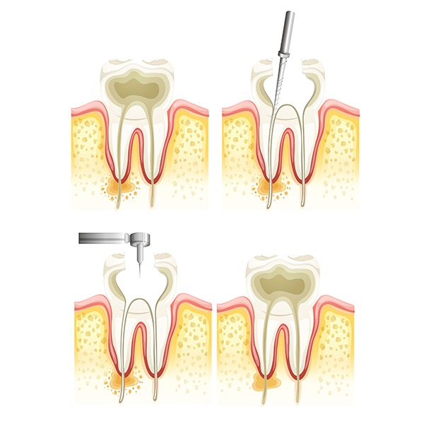 Root Canal Therapy | Kingsland Family Dental Centre | SW Calgary | General Dentist