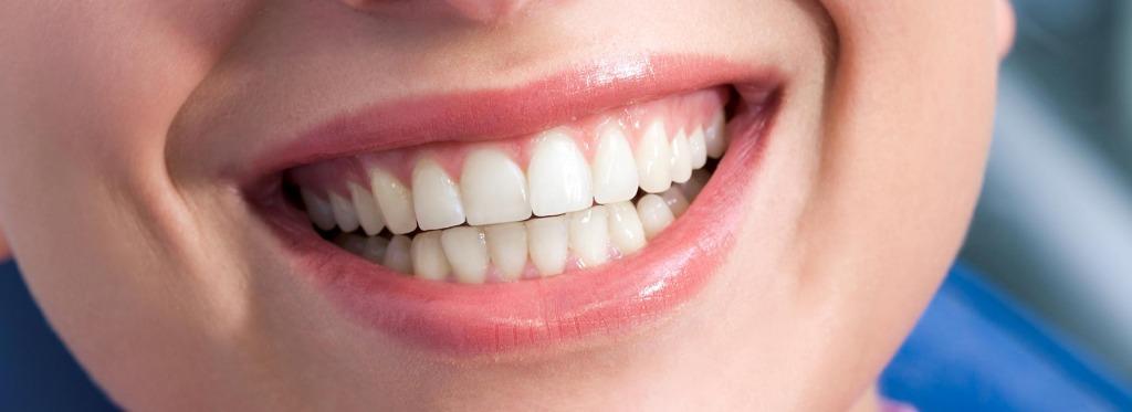 Six Month Smiles   Kingsland Family Dental Centre   SW Calgary   General Dentist