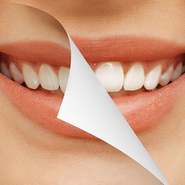 Teeth Whitening | Kingsland Family Dental Centre | SW Calgary | General Dentist