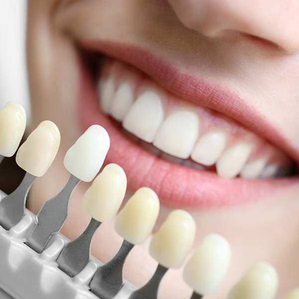 Porcelain Veneers | Kingsland Family Dental Centre | SW Calgary | General Dentist
