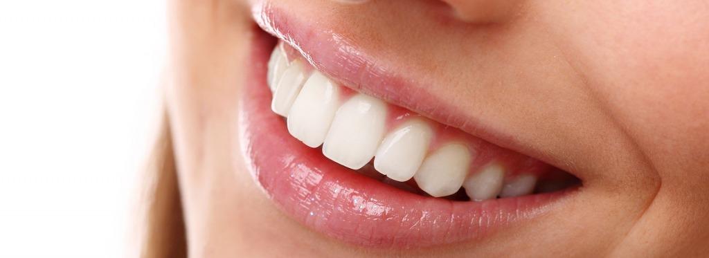 Zoom Teeth Whitening   Kingsland Family Dental Centre   SW Calgary   General Dentist